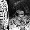 Intradural Extramedullary Metastasis ...