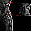 Neuromyelitis Optica and Systemic Lupus ...