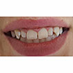 Aesthetic Improvement of White Spot Fluorosis ...